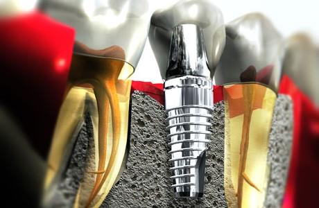 Implant Dentar Revoluționar