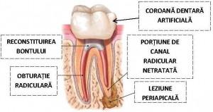 Retratament endodontic
