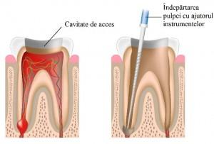 Tratament endodontic - indepartarea pulpei cu ajutorul instrumentelor