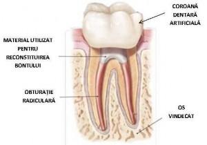 Tratament endodontic - reconstruire 2