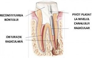 Tratament endodontic - reconstruire