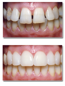 vertical-porcelain-veneers